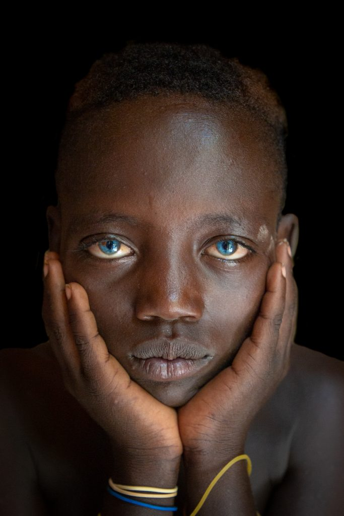 Portrait of a young African boy with blue eyes